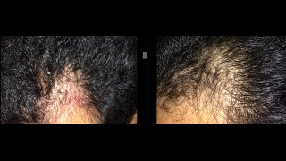 Baldness Cure for Temples Using NO Medications: 10 month Update