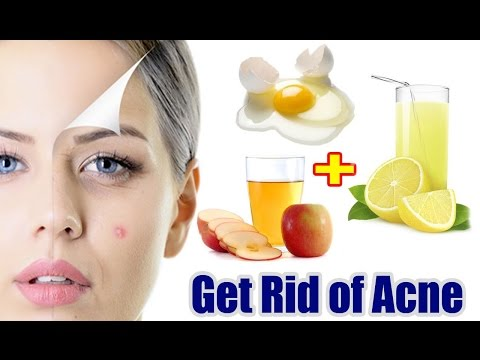 know-how-get-rid-of-acne-fast-and-naturally