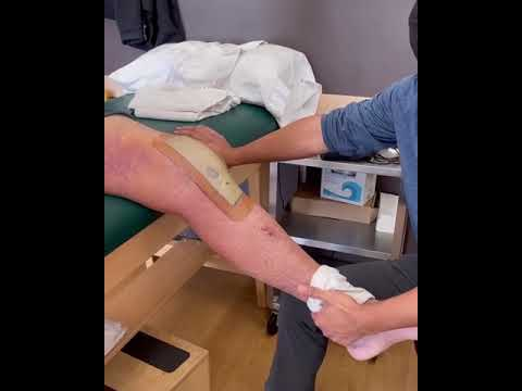 Importance of ROM and Muscle Activation Early in Knee Surgery Recovery