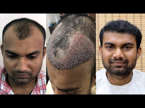 safe-hair-transplant-|-best-fue-hair-transplant-result-2019-|-new-roots-hair-clinic