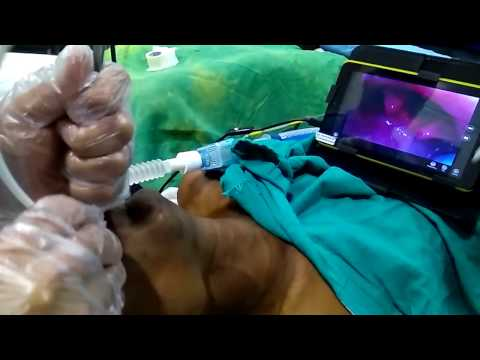1 finger mouth opening intubation with tascope video laryngoscope