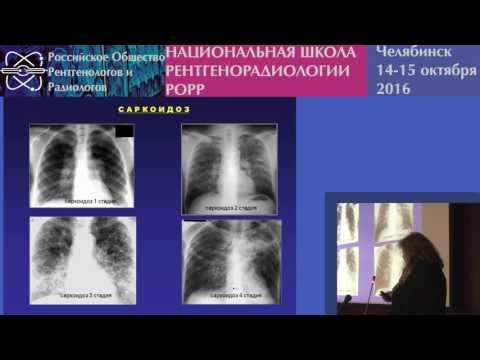 И.А. Соколина - Саркоидоз органов дыхания