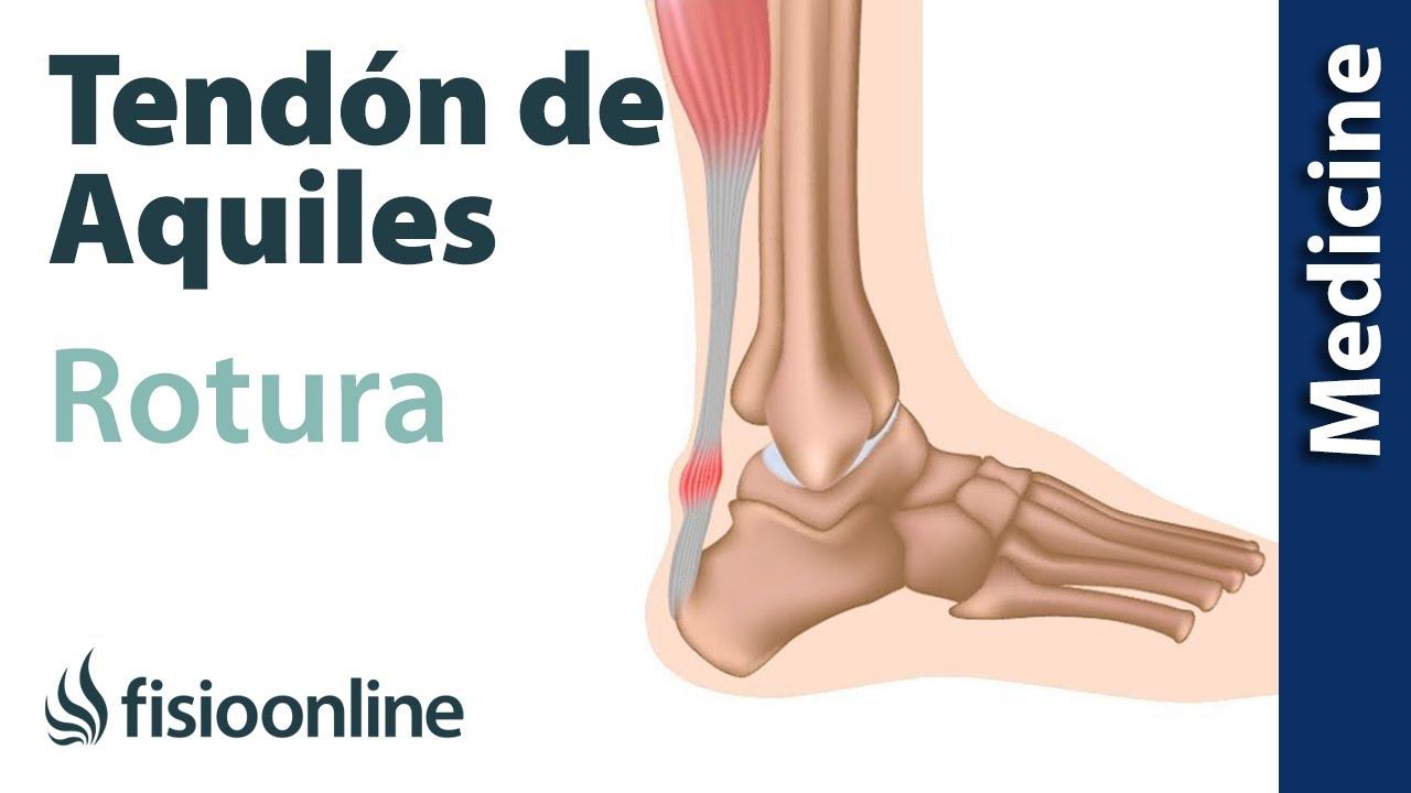 De epub ruptura aquiles del tendon