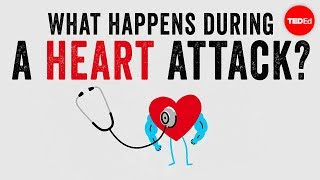 What happens during a heart attack?  Krishna Sudhir