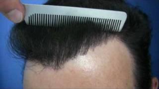 Best Hair Transplant Video - Dr Wong 4735 Grafts - 1 Session