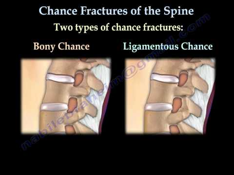 Chance Fractures of the Spine - Everything You Need To Know - Dr. Nabil Ebraheim