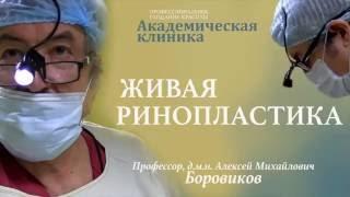 Открытая ринопластика.  Профессор Боровиков А. М.