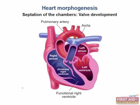 Cardiac embryology 2 usmle first aid