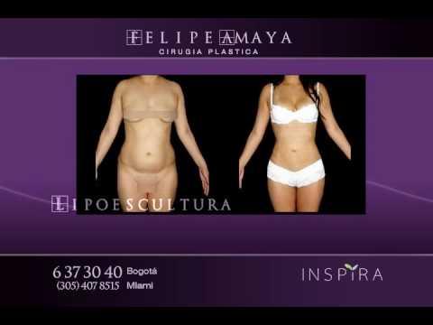 Lipoescultura - Dr Felipe Amaya  - Bogota Colombia