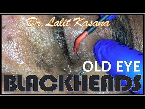 OLD EYE BLACKHEADS REMOVAL BY DR.LALIT KASANA