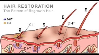 The best DHT BLOCKER food i have personally use it ( hair regrowth food )