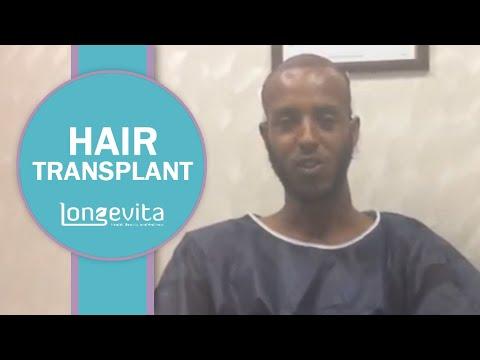 Izmir Hair Transplant | Longevita