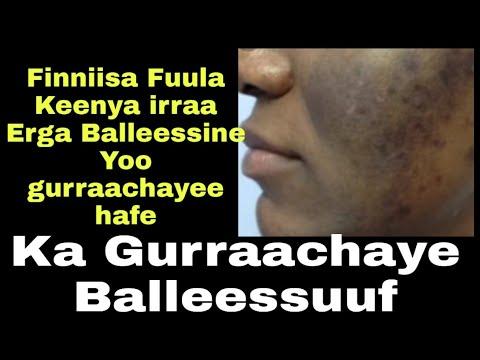 Download Erga Finniisni Fuula irraa isinii Badee Booda iddoo irraa Bade Sanitti Kan Gurraachayee Hafu Yoo Ta'