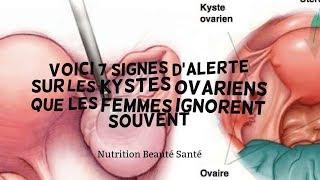 Voici 7 signes d'alerte sur les kystes ovariens que les femmes ignorent souvent