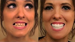 Porcelain Veneers were SMASHED in a FIGHT! See Makeover by Brighter Image Lab