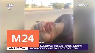 Смотреть видео Житель Якутии сделал кровавое селфи на асфальте после ДТП - Москва 24 онлайн