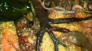 Анатомия человека. Органы брюшной полости.