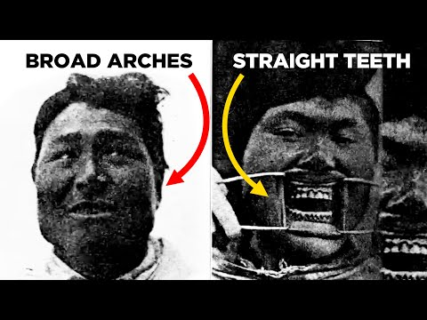 Why 95% Of The People Used To Have Straight Teeth. Lecture By Dr Mew - Critique By Dr McIntosh (ENT)