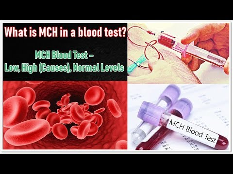 MCH Blood Test – Low, High (Causes), Normal Levels