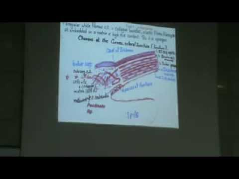 Dr Gehan from Cornea to Iris 23-3-2014