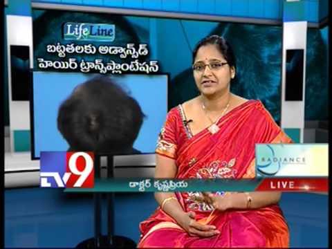Advanced Hair Transplantation for Baldness   Tv9