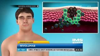 Kanker Usus Besar: Diagnosis Cermat dengan Penanganan Tepat!.