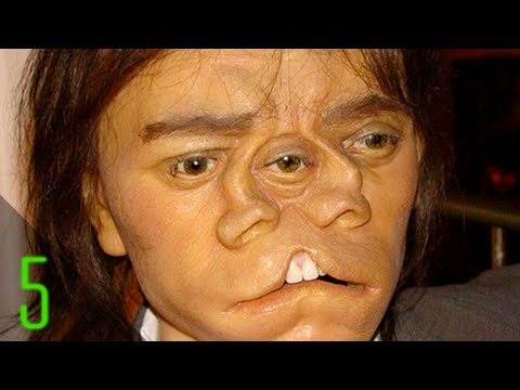 5 Most Incredible Sideshow Freaks Part 2
