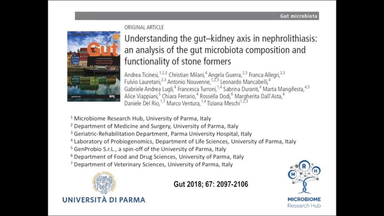 Understanding the gut-kidney axis in nephrolithiasis
