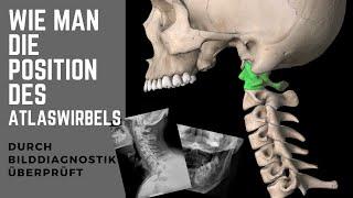 ATLASWIRBEL: Wie man seine Position durch Röntgen, MRT, CT CAT DVT überprüft