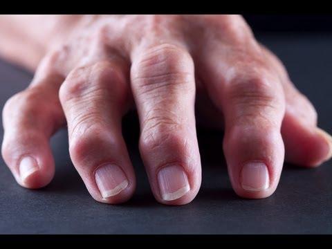 Rheumatoid Arthritis Risk Factors