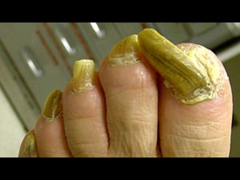 How to Get Rid of Toenail Fungus Fast & Naturally at Home