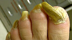 How to Get Rid of Fungus on Feet and Toenails Fast. Home Remedies at The End Will Shock You
