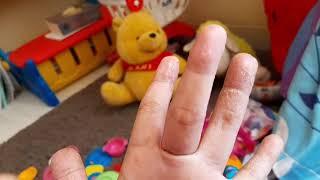 Atopic Dermatitis Pengertian dan Gejalanya.