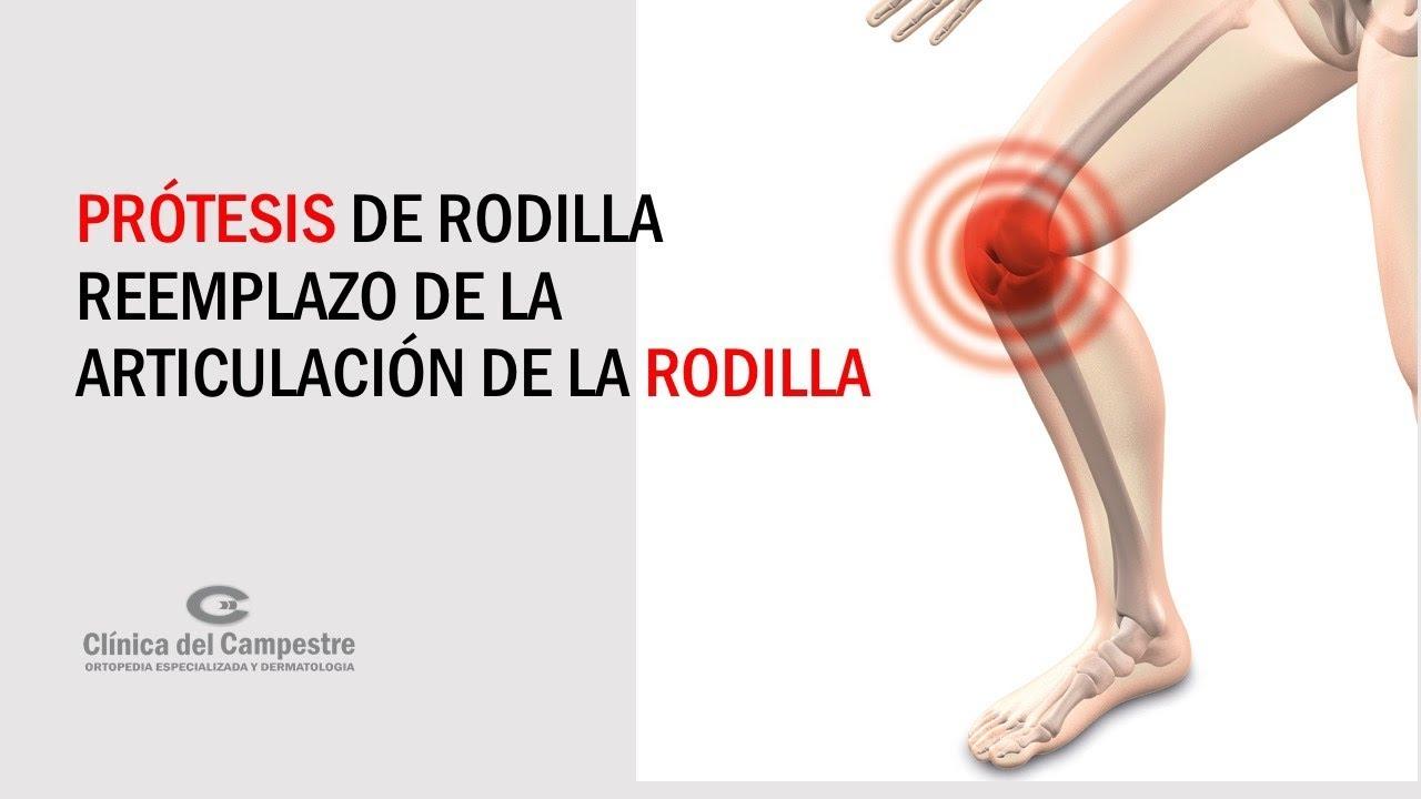 Prótesis De Rodilla Reemplazo De La Articulación De La Rodilla Youtube