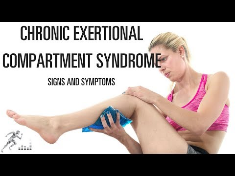 What Are The Symptoms Of Chronic Exertional Compartment Syndrome (CECS)?