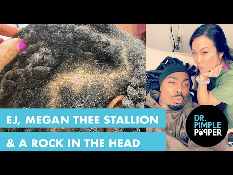 EJ, Megan Thee Stallion & A Rock In The Head