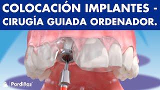 Cirugía guiada por ordenador para colocar implantes dentales ©