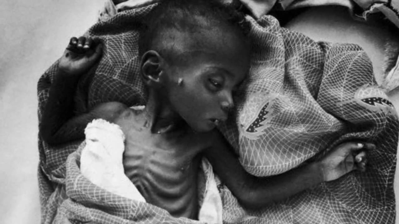 starvation in africa essay Essay about malnutrition and child the people in africa and that is what my project is on my project is on persuading you to help the starving kids in africa.