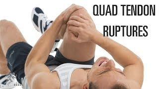 Quadriceps tendon rupture: Mechanism of injury and treatment options
