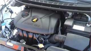 New Hyundai Elantra Sedan Engine Bay Review