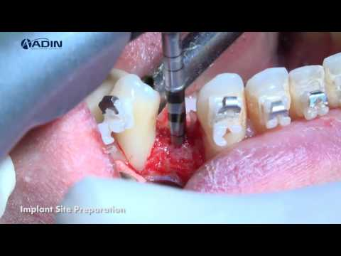 Use of Adin CloseFit™ UNP 2.75mm for Treating a Narrow Interdental Space
