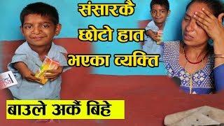 अचम्मको व्यक्ती - संसारकै सबैभन्दा छोटो हात भएका दर्शन - खुट्टाले गुच्चा खेल्छ्न || Darshan Pariyar
