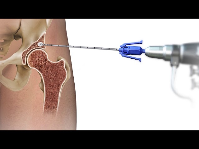 New Procedure Helps Patients Avoid Hip Replacement, Repair Joint Damage