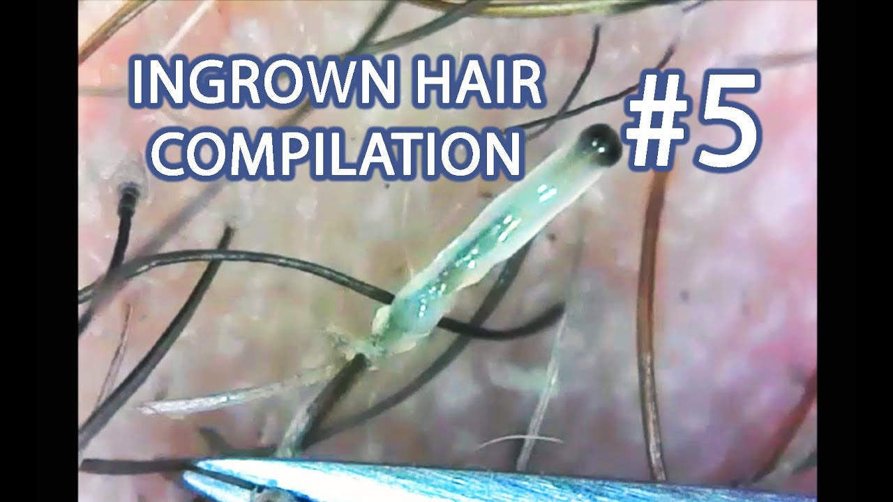 Ingrown Hair Compilation #5: Squishies Included!