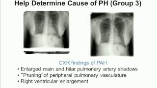 Pulmonary Hypertension: Improving Diagnosis