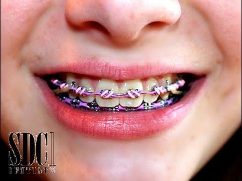 คนจัดฟัน คุณเกี่ยวยางจัดฟันแบบไหน