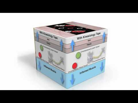 How Kinesiology Tape Works