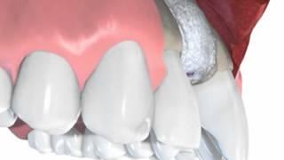 Утолщение (наращивание) кости с дальнейшей имплантацией зуба(Довольно сложная операция и делают ее опытные врачи. Если вы решили поставить зубной имплант и при этом..., 2015-11-09T16:53:16.000Z)