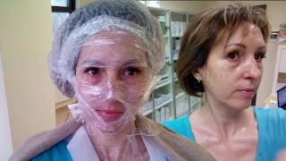 ЖЕЛТЫЙ ПИЛИНГ - процедура и шелушение день за днем | Golden Yellow Peel Dermatime