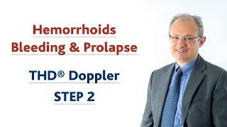 Bleeding & Prolapse: THD Doppler - STEP 2